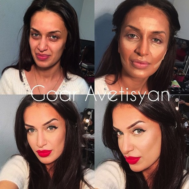 contouring-goar-avetisyan-before-after