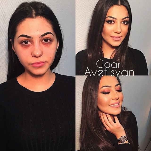contouring-goar-avetisyan-before-after-2015