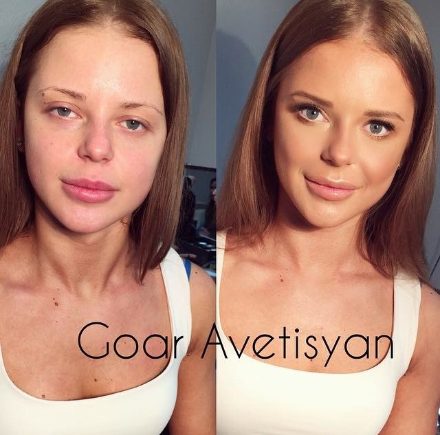 contouring-goar-avetisyan-before-after:after